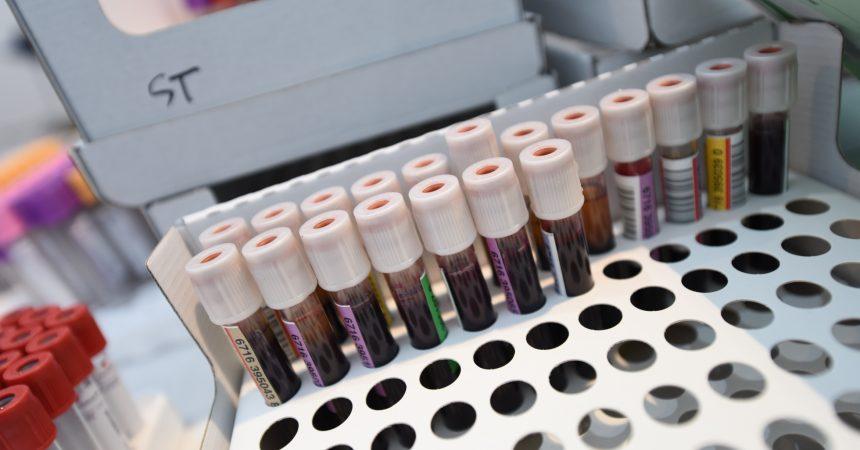 Don du sang : les donateurs ont répondu présent pour les deux collectes d'été